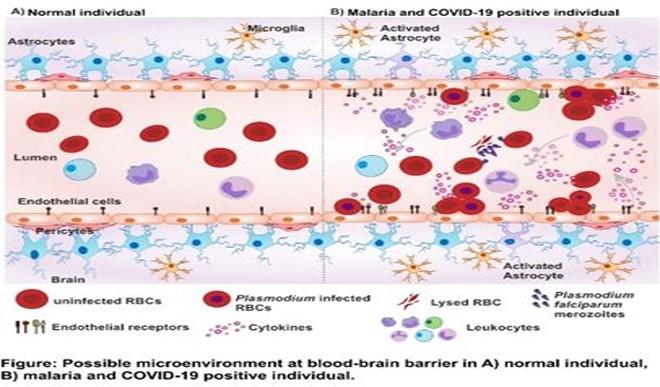 कोविड और मलेरिया की दोहरी स्थिति में घातक हो सकता है स्टेरॉयड