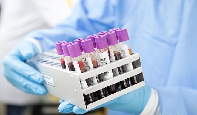 जानिए क्या होता है डी−डाइमर टेस्ट और कोरोना मरीज क्यों दे रहे हैं इस टेस्ट को प्राथमिकता